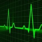 Medical IT - Sinus Rhythm